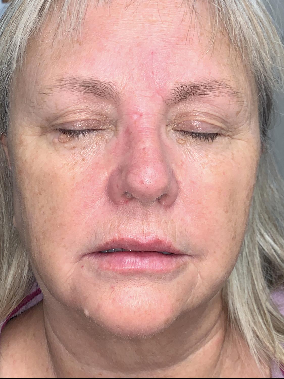 Facial Filler After   Belle Ame Med Spa Oklahoma City