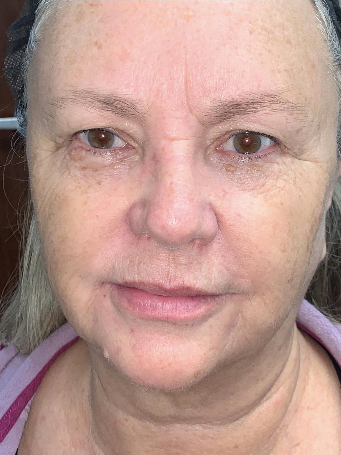 Facial Filler Before   Belle Ame Med Spa Oklahoma City