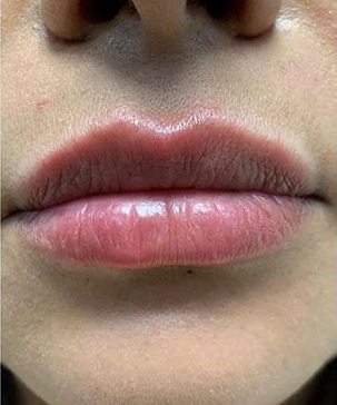 Facial Filler with Versa Lips After   Belle Ame Med Spa Oklahoma City