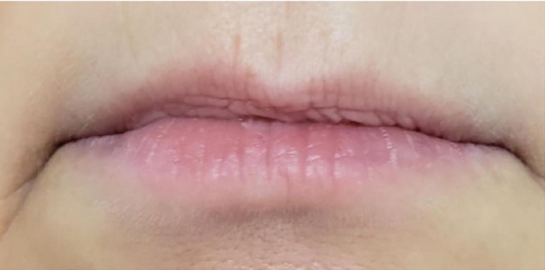 Facial Filler Lips Before | Belle Ame Med Spa Oklahoma City