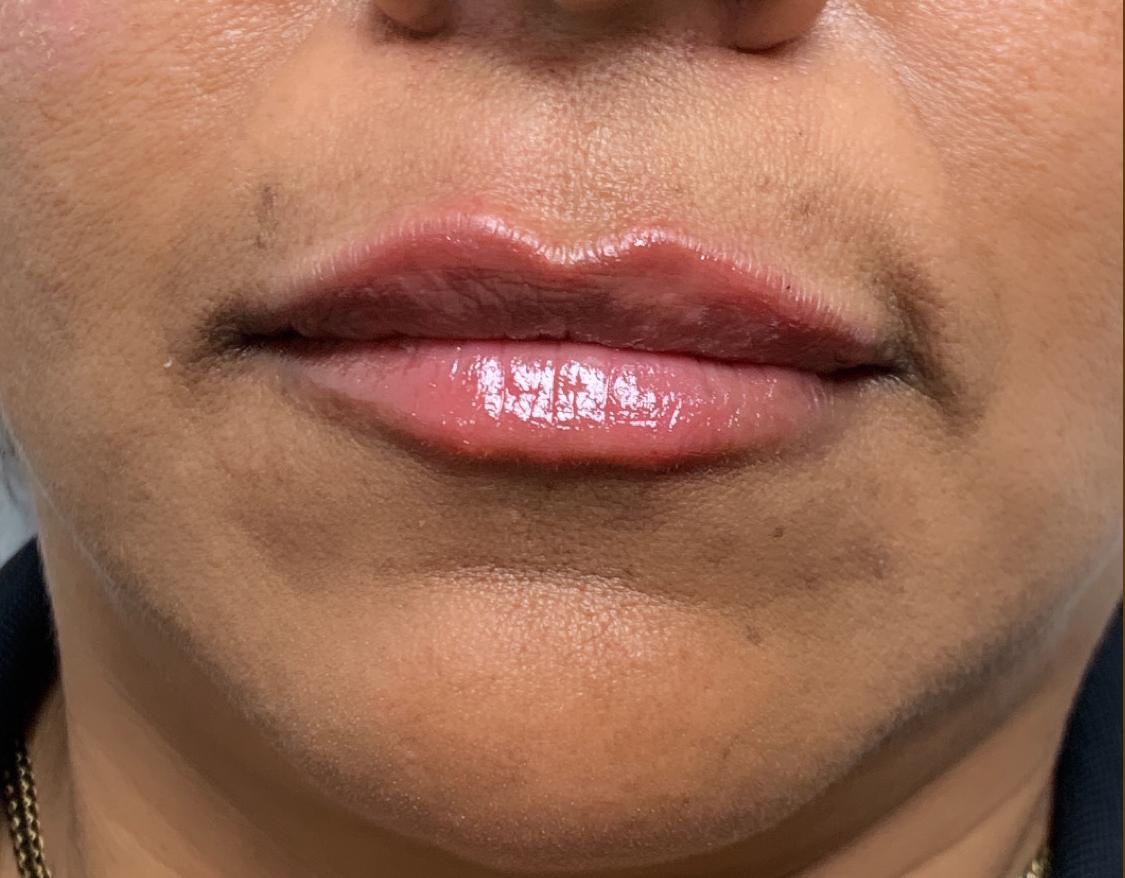 Filler After 7 (lips) - Belle Ame OKC