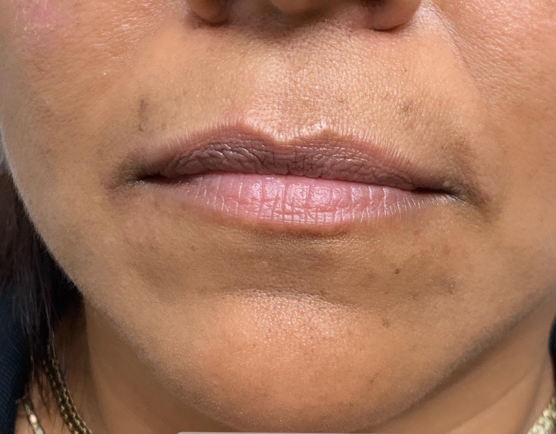 Filler Before 7 (lips) - Belle Ame OKC